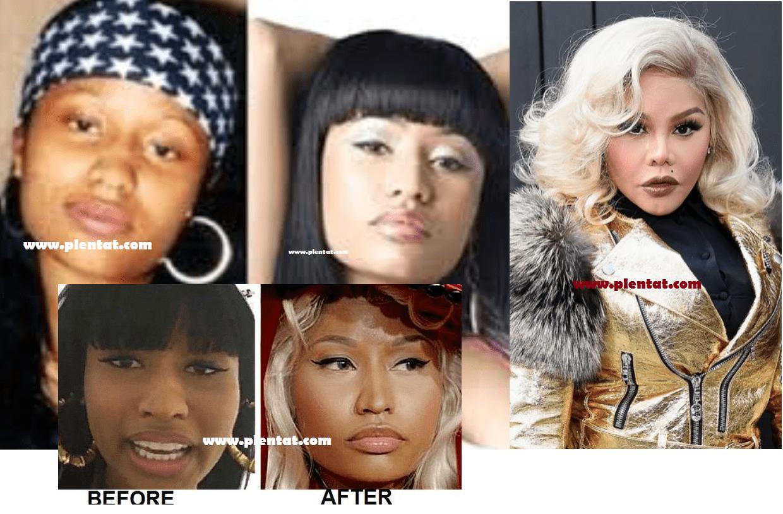 Nicki Minaj Before Plastic Surgery