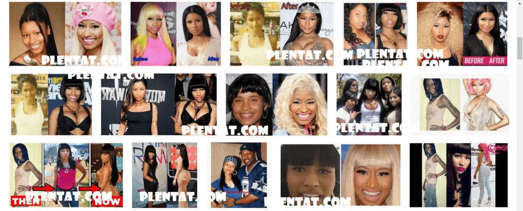 nicki minaj Before Plastic Surgery After