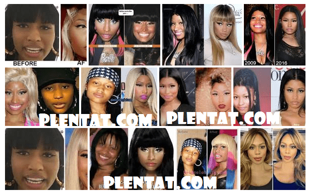 nicki minaj nose job