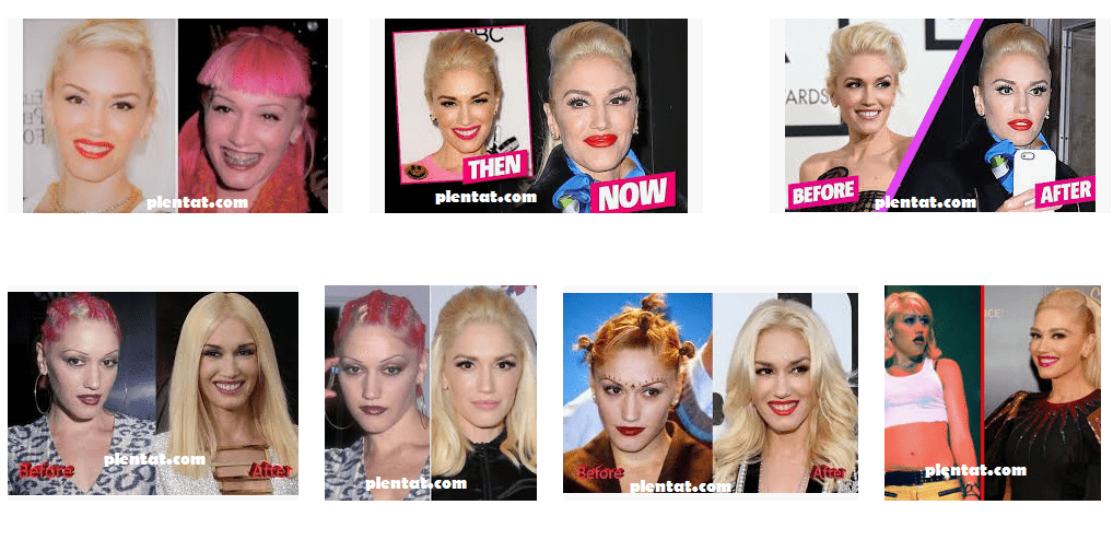 Gwen Stefani Plastic Surgery Before And After
