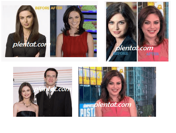 Bianna Golodryga Plastic Surgery Before And After