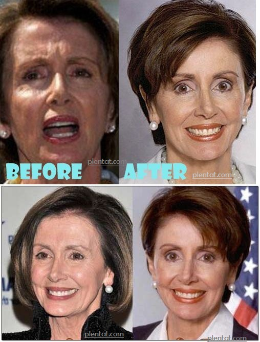 Nancy Pelosi Before Plastic Surgery After